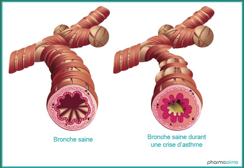Bronche pendant une crise d'asthme