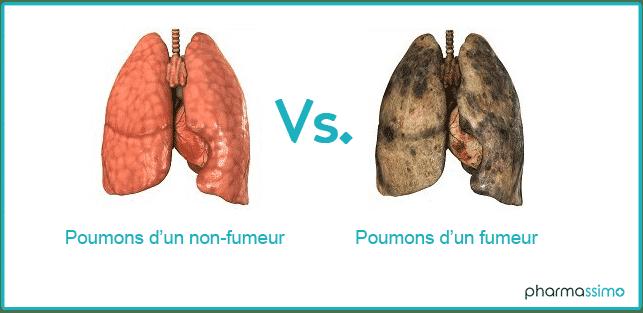 Poumons d'un fumeur par Pharmassimo