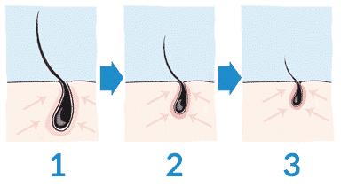 Fonctionnement du DHT - Chute de cheveux