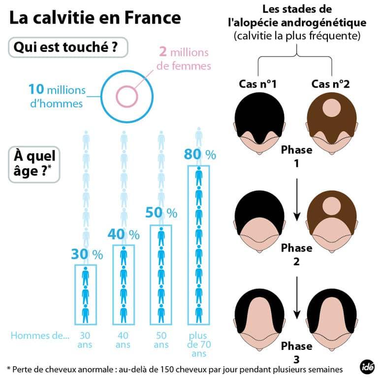 Infographie Calvitie | Perte de cheveux