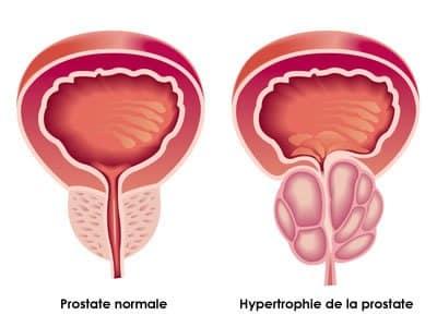Cialis et hypertrophie bénigne de la prostate